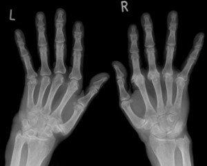 Social Security Disability Benefits for Arthritis